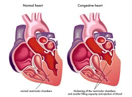 What is congestive heart failure? Discuss the symptoms and medications
